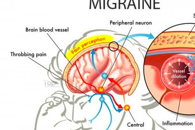 Home Remedies for Migraines | Top 10 Home Remedies