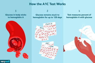 The A1C Test: Uses, Procedure, Results