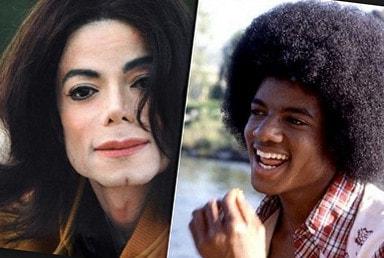 Майкл джексон что с кожей
