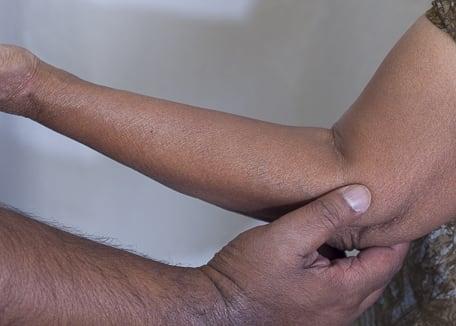 Acupressure point LI 11 for eczema