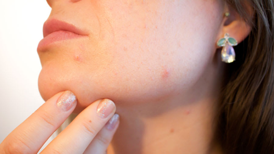 Acne lesions on the cheek and nose