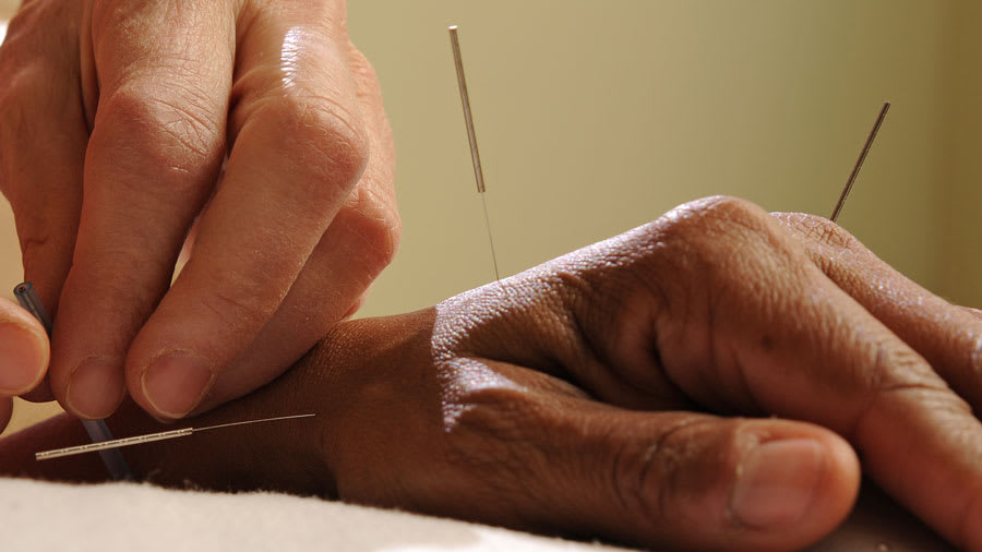 Acupuncture needles inserted into the hand