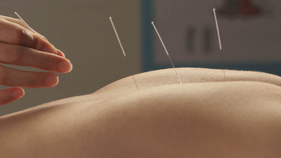 ​Acupuncture needles placed on the back with practitioner hand visible