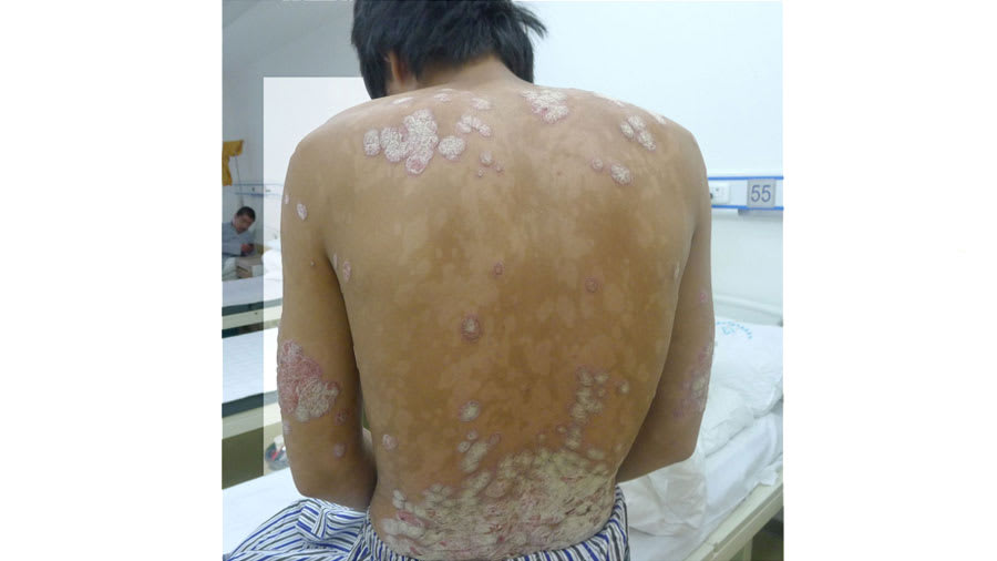 Psoriasis on the back in a clinic room
