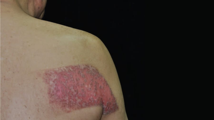 Skin inflammation on the back after radiation exposure