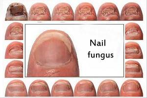 Fungus treatment for nails