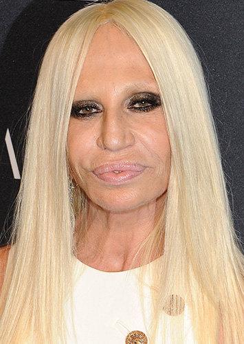 Донателла Версаче после операции фото
