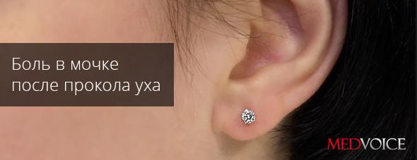 Можно ли прокалывать уши во время беременности