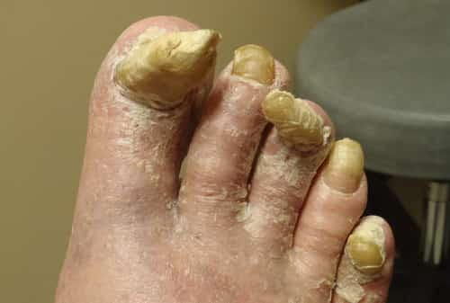 Hard thick toenails