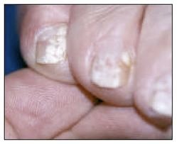 Mentone nails