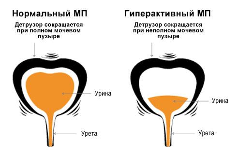 Гіперактивний сечовий міхур - причини, симптоми і лікування