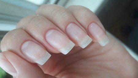 Болезни ногтей после шеллака