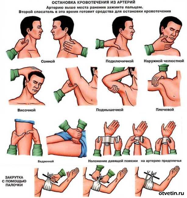 До способів зупинки венозної зовнішнього кровотечі відноситься