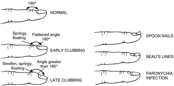 Koilonychia nails