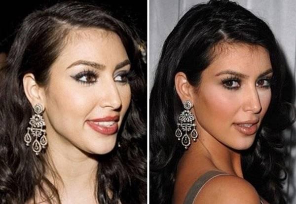 Как на самом деле Ким Кардашьян сделала такую фигуру и лицо: тайны звезды и фото до - после