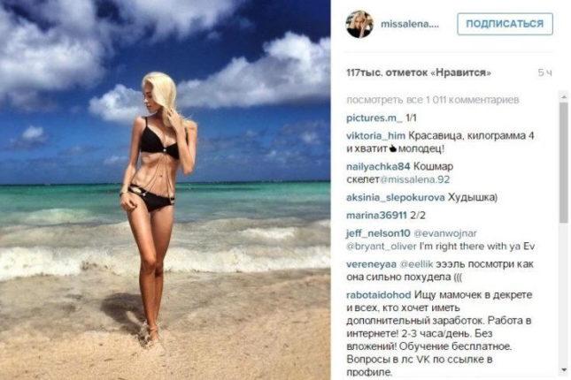 Алена Шишкова анорексия