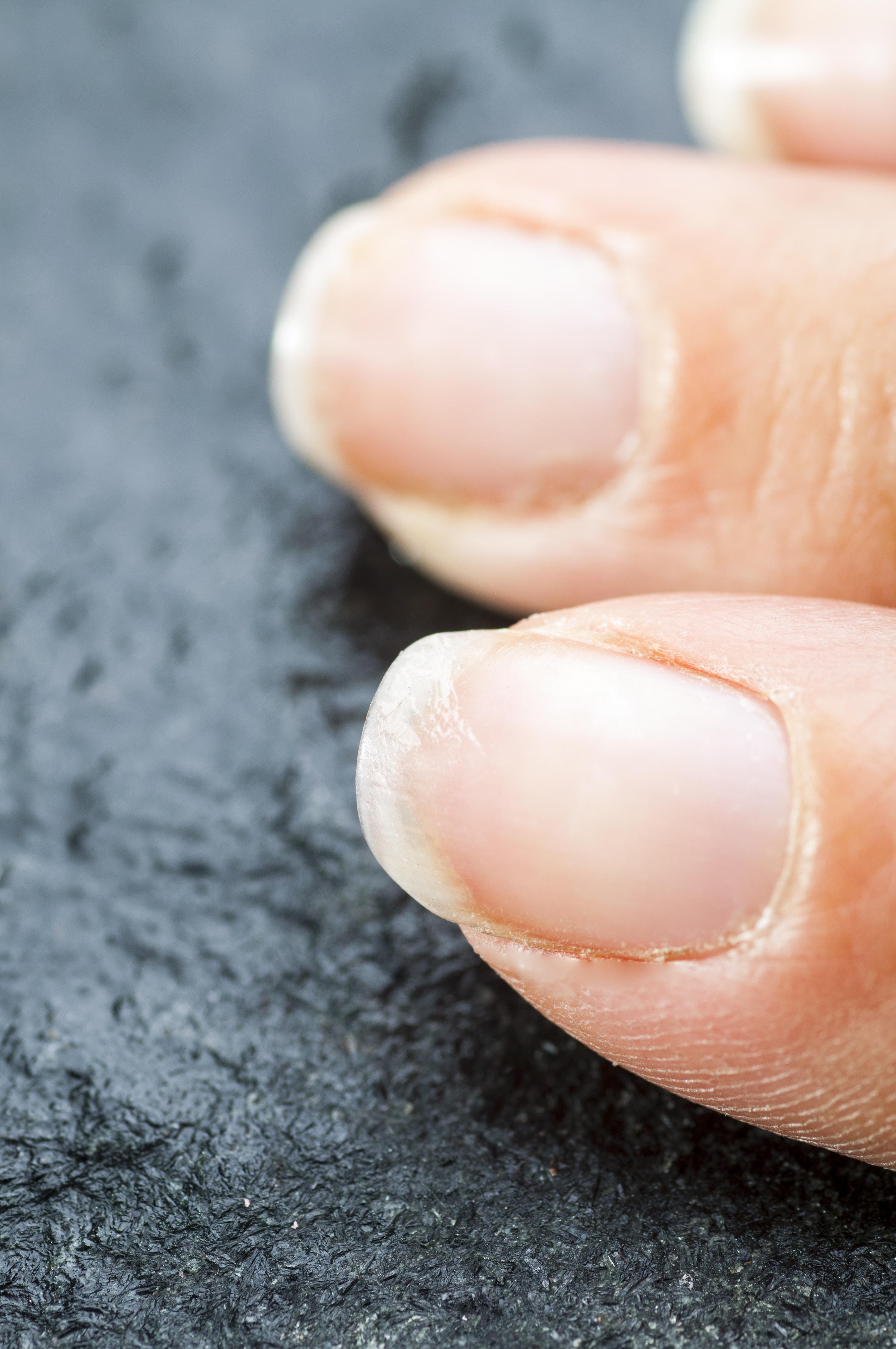 Brittle fingernails in winter