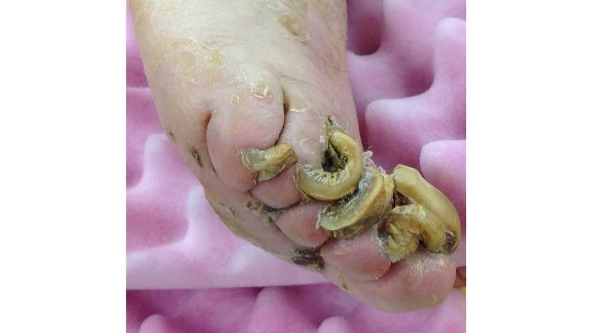 How toenails grow