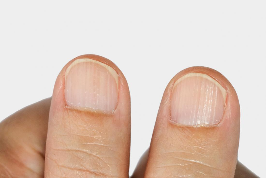 What vitamin deficiency causes ridges in fingernails