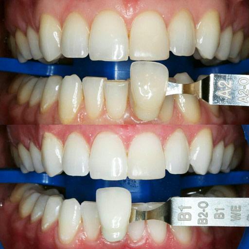 Как отбелит зубы
