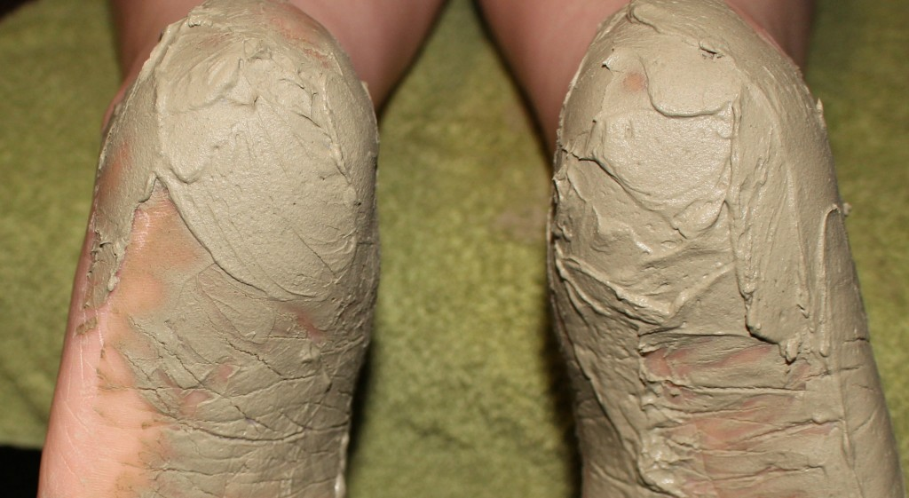 Natural Remedy Cracked Heels