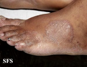Cancer toenails pictures