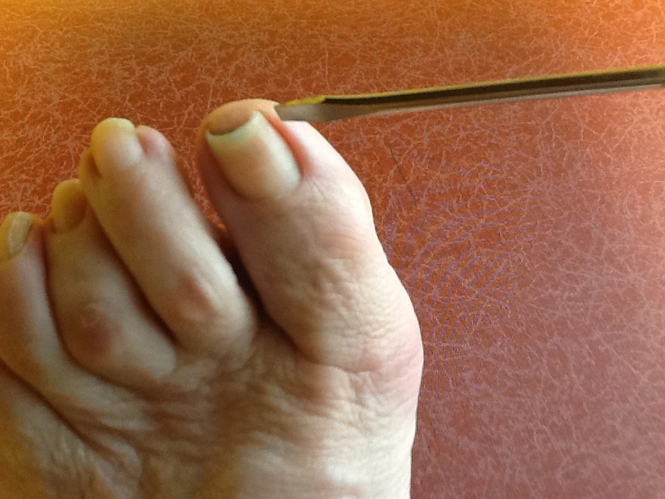 Correct curved toenails