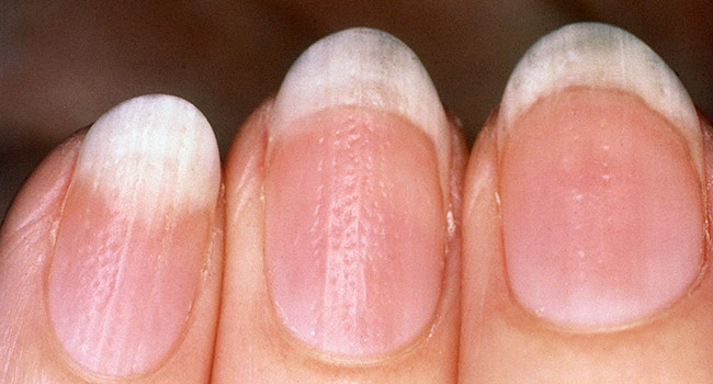 Pale fingernails symptoms