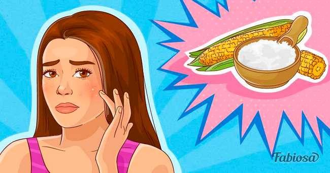 7 способов избавиться от белых угрей в домашних условиях