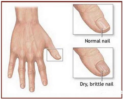 Dry toenails causes