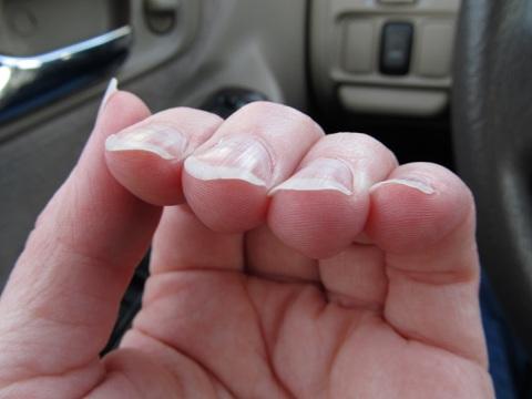 Fingernails curling over