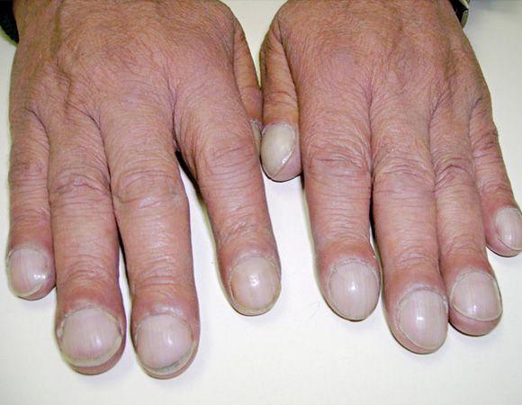 Nasty fingernails