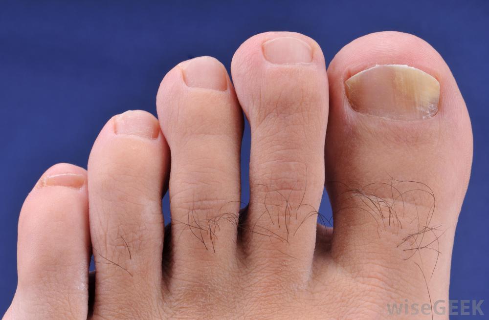 Mens toenails