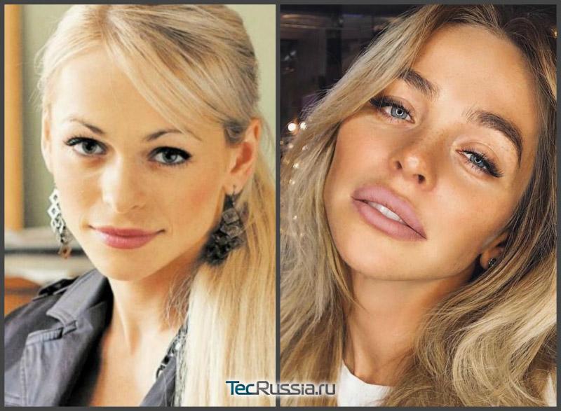 фото Хилькевич до и после контурной пластики губ филлерами