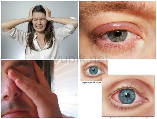 Возможная реакция на препарат для глаз