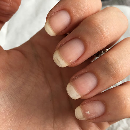 Do shellac nails damage your nails