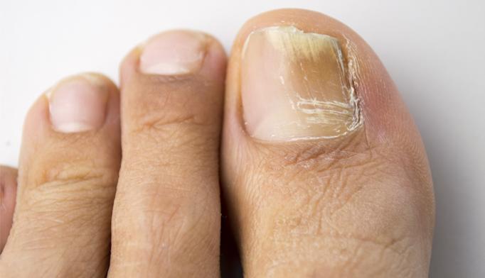 Onychomycosis of toenails