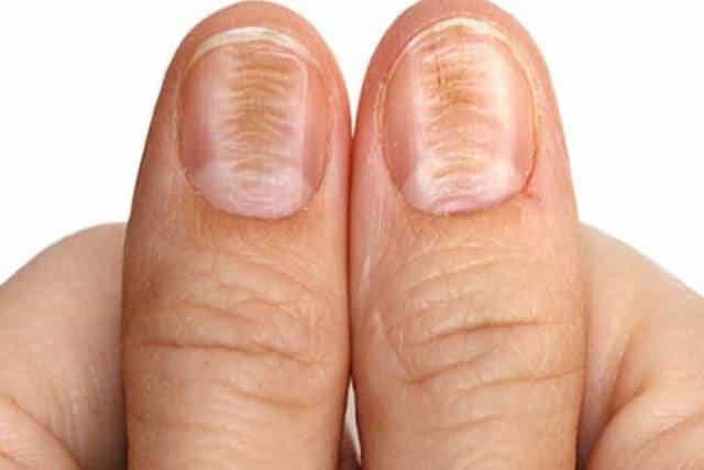 Deep horizontal ridges in fingernails