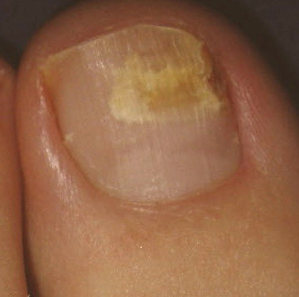 Dry brittle toenails treatment