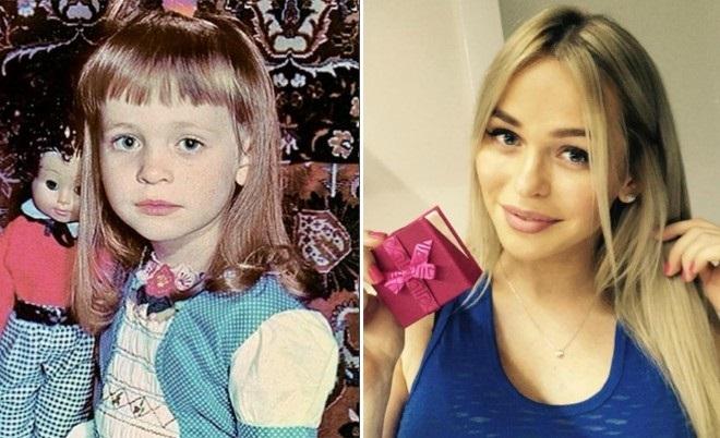 Хилькевич анна до и после