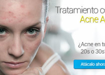 tratamiento acne adulto, tratamiento para acne adulto, acne adulto, dermatologo acne