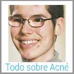 tratamiento del acne, tratamiento acne, tratamiento para acne