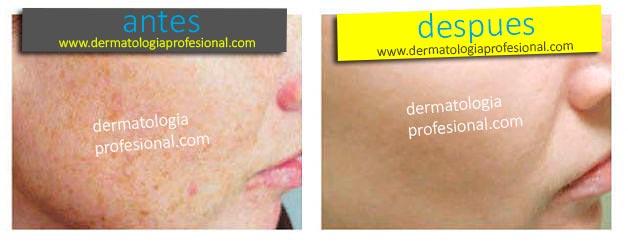 Tratamientos dermatologicos cn resultados mira fotos e - Quitar manchas de la pared ...