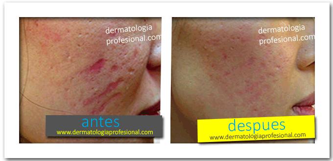 Super Intensivo Tratamiento Para El Acne Y Cicatrices