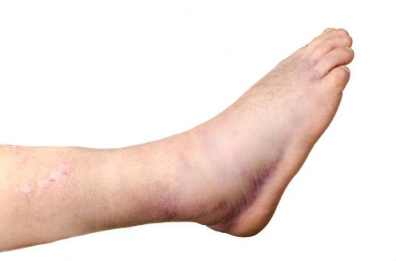 Ноги пухнут причины