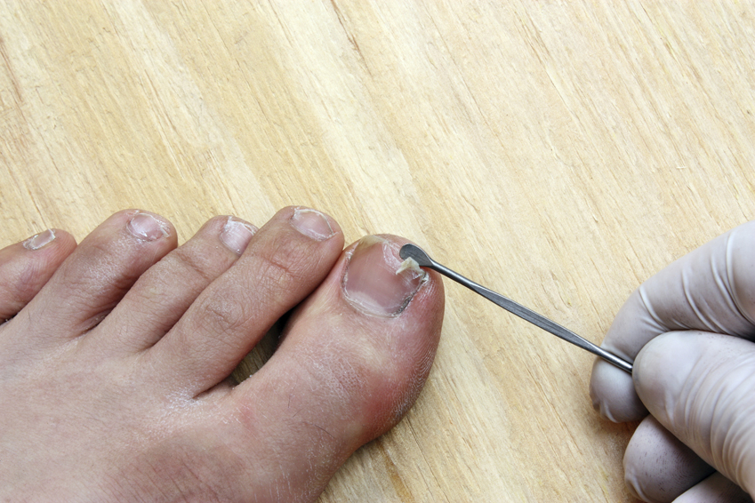 Cracked toe nails cure