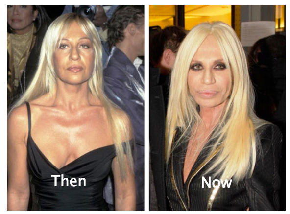 Celebrities plastic surgery before after