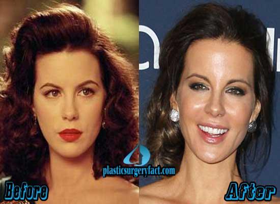 Kate beckinsale plastic surgery pics