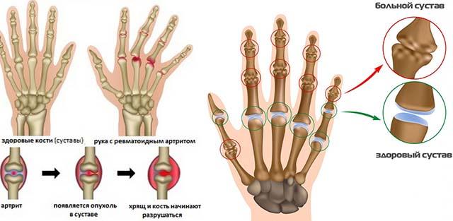 Ревматоидный и ревматический артрит