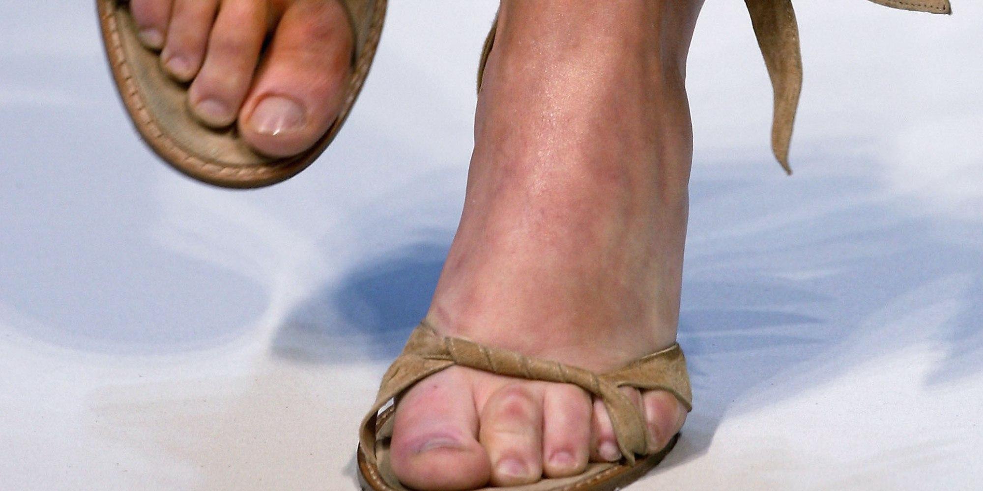 Опухли ноги и руки что это